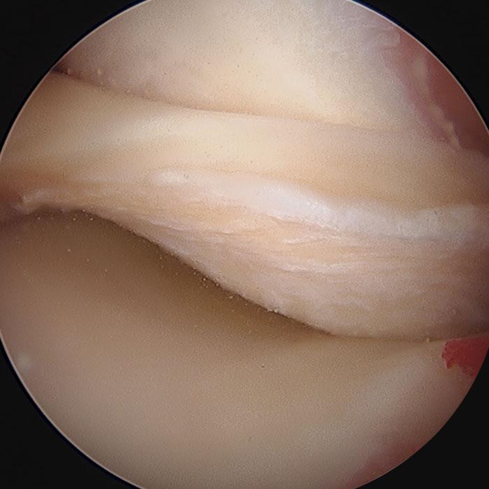 lesione meniscale